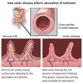 Mechanism of coeliac disease